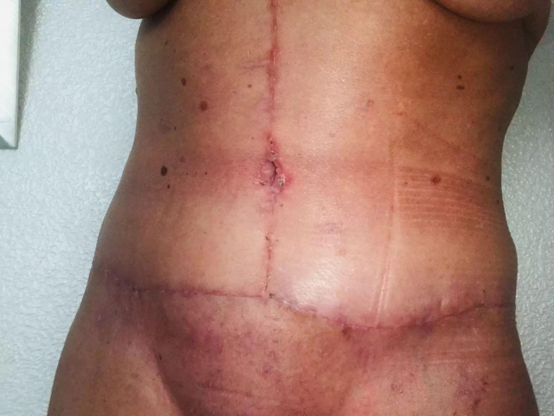 Fantastisches Ergebnis nach Bauchdeckenstraffung