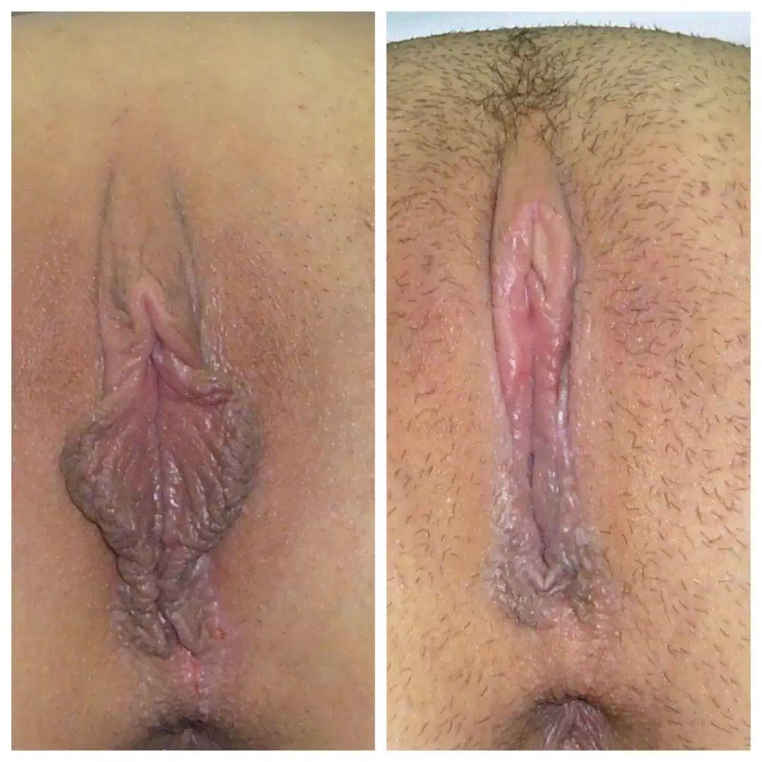 antes y después vaginoplastia