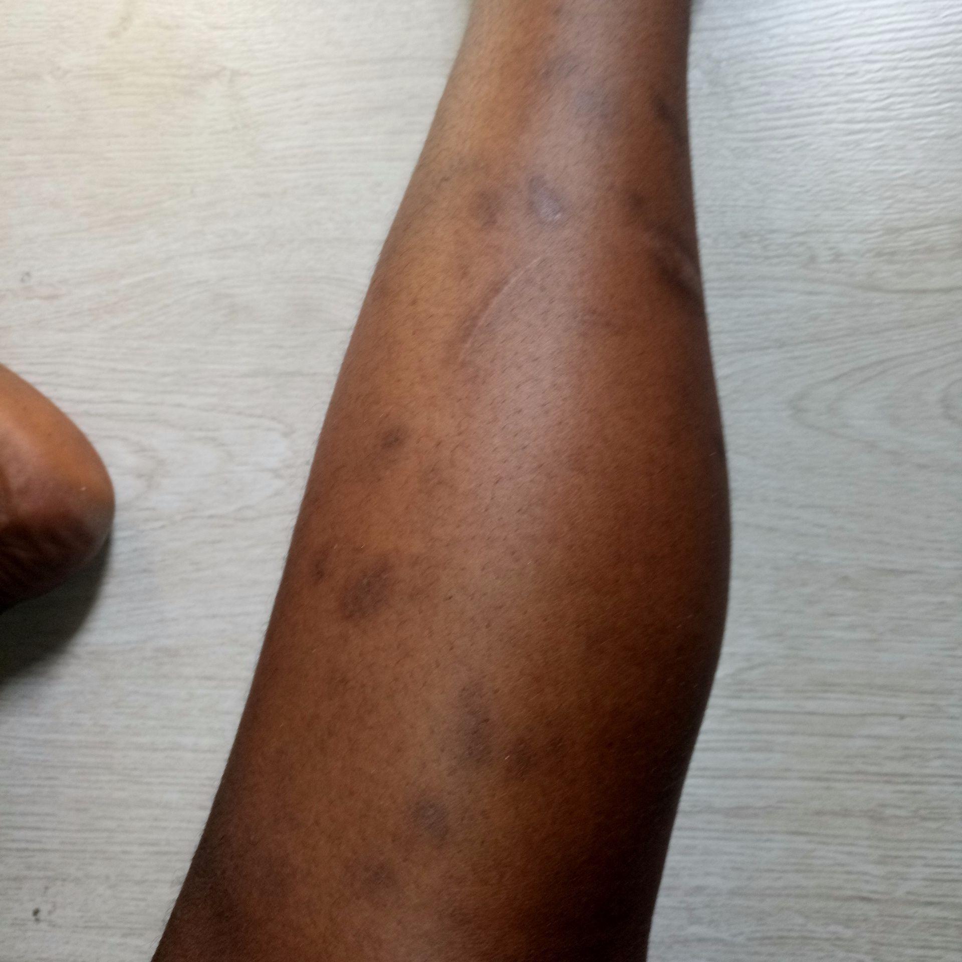 Childhood Scars On My Legs Estheticon Com