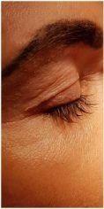 Dermaestet, s.r.o. - Odstranění nadbytečné kůže pomocí Plexr (plazmová technologie)