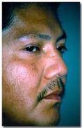 Dr. Jose Luis Valero S. - Foto Antes de - Dr. Jose Luis Valero S.