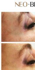 Neo Beauty Clinic - Nechirurgická rhinoplastika – zarovnání kontur nosu, jeho nerovností a potlačení neestetických křivek. V tomto případě byl použit pevný výplňový materiál na bázi kyseliny hyaluronové, který v aplikovaném místě vydrží až dva roky.