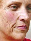 Traitements laser - dermatologie esthétique - Cliché avant