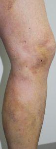 Leczenie żylaków - Zdjęcie przed - dr n. med. Wojciech Rybak - ARS ESTETICA