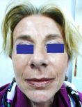 Lifting viso - Foto del prima - Prof. Roberto  d
