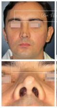Rhinoplastie - Rhinoplastie secondaire (patient opéré à l