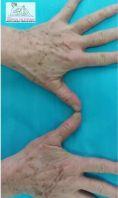 Rimozione tatuaggi - laser - Foto del prima - Dott.ssa Monica De Stefani