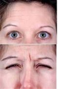 Botulinum toxin - Wrinkle Removal - Photo before - Clinique of Plastic Surgery