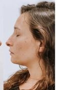 Profiloplastica (Rinoplastica e Mentoplastica) - Foto del prima - Dr Uberto Giovannini PhD