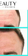 Injekční výplně - Aplikace botulotoxinu do oblasti glabely a celého čela. Samotná aplikace nezabere více jak 10 minut a efekt vydrží cca 6 měsíců (velmi záleží na fyzické aktivitě klienta).