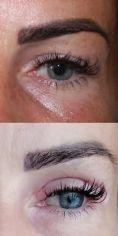 Operácia očných viečok (Blepharoplastika) - Operácia očných viečok (Blepharoplastika)