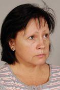 Facelift (operace obličeje), SMAS lifting - fotka před - MUDr. Lucie Kučerová