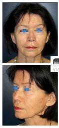 Dr Romain Viard - Lifting cervico facial avec lipostructure chez une femme de 76 ans. Effet recherché obtenu avec redéfinition de l'ovale du visage et redinamisation des joues.