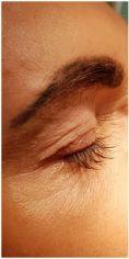 Dermaestet, s.r.o. - Odstranění nadbytečné kůže pomocí Plexr (plazmová technologie) – zahojení očního víčka