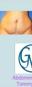 Abdominoplastia - Cirugía Estética del Abdomen, proporciona una pared abdominal más plana, sin estrías, flacidez o cicatrices por cesáreas. Es una técnica para mejorar notoriamente la forma del ombligo. Dra. Grissel Mayen
