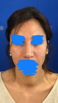 Hyaluronic acid-based wrinkle fillers - Photo before