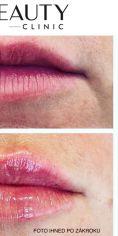 Neo Beauty Clinic - Hydratace rtů pomocí kyseliny hyaluronové. Dodá objem, zvýrazní kontury, vyhladí vrásky a osvěží. Efekt je okamžitý, finální vzhled rtů do 4 týdnů, kdy kyselina pojme vodu a dosáhne tak svého maximálního objemu. Foto ihned po zákroku.