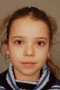 Operace uší (Otoplastika) - fotka před