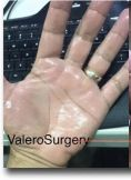 Botulinum toxin - Wrinkle Removal - Treatment of hyperhidrosis or excessive sweating of hands, and soles, and also armpits, with botulinic toxin or Botox®