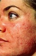 Laser acne treatment - Photo before - Klinika Laser Esthetic