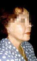 Liposuction - Photo before - MUDr. Janka Točíková