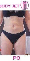 Liposukcja (odsysanie tłuszczu) - Zdjęcie przed - BONA DEA Medycyna Estetyczna