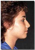 Lifting facial - Foto Antes de - Dr. Jose Luis Valero S.