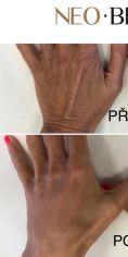 Neo Beauty Clinic - Reálné fotografie před a po aplikaci Radiesse. Radiesse okamžitě viditelně omlazuje kůži stimulací tvorby vlastního kolagenu. Obsahuje polysacharidový gel, ve kterém se nachází mikročástice calcium hydroxylapatitu. Složení obsahuje vysoce kvalitní tělu vlastní látky a tento efekt je okamžitý a nabíhá ještě celý měsíc. Liftingovou výplň Radiesse lze účinně aplikovat i do hlubokých vrásek pro jejich redukci a zpevnění kontur. Efekt vydrží 18-24 měsíců.