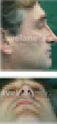 Avelane Clinic - Fotka pred - Avelane Clinic