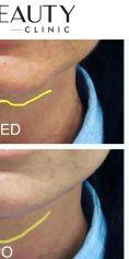 Neo Beauty Clinic - Úprava tvaru brady výplní na bázi kyseliny hyaluronové. Díky tomuto velice žádanému zvýraznění dolní třetiny obličeje a brady vyladíme celkovou harmonii tváře a dosáhneme atraktivních mladistvých kontur. Současně se vytvoří opora pro rty a zvýrazní se jejich plnost.