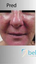 Laserové odstránenie rozšírených žiliek - Fotka pred - BELLEZA - klinika plastickej chirurgie a laserovej medicíny