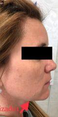 Injekční výplně - Modelace kontur obličeje výplněmi