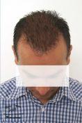 Transplantácia vlasov - Fotka pred - INTERKLINIK, s.r.o.