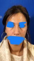 Dr Emmanuel Elard - Le traitement du contour des yeux pour paraitre moins fatigué et moins relaché est un des plus demandés par mes patients, c