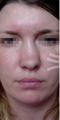 Rhinoplasty (Nose Job) - Photo before - Mediestetik, skupina klinik