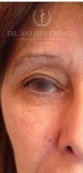 Eyelid surgery (Blepharoplasty) - Photo before - Dr. Albert Feichter