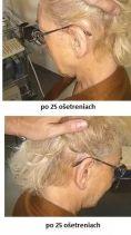 Haarausfall Therapie - Vorher Foto - Eveclinic Bratislava