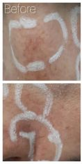 Spider veins laser removal (redness, birh marks) - Photo before - Dr Alberto Leguina-Ruzzi MD PhD