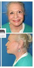 Lipofilling du visage - Cliché avant - Dr Romain Viard