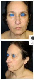 Mini lifting (lifting cervico-facial) - Cliché avant - Dr Romain Viard