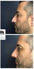 Rhinoplastie secondaire - Rhinoplastie réparatrice chez un homme se plaignant d'une déviation du nez et d'une bosse. A noter que la pointe a été traitée dans le même temps pour harmoniser le résultat. Résultat à 3 mois.