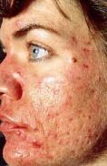 Laserová léčba akné - fotka před - Klinika Laser Esthetic