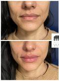 Dr Romain Viard - Augmentation des lèvres par acide hyaluronique.  Résultat pendant 10 mois environ. Procédure indolore par l'application d'une puissante crème anesthésiante.