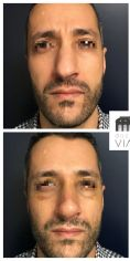 Rhinoplastie - Rhinoplastie réparatrice chez un homme se plaignant d'une déviation du nez et d'une bosse. A noter que la pointe a été traitée dans le même temps pour harmoniser le résultat. Résultat à 3 mois.