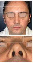 Septoplastie (opération de la cloison nasale) - Cliché avant