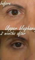 Operácia očných viečok (Blepharoplastika) - Fotka pred - MUDr. Jozef Fedeleš PhD.