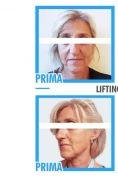 Lifting viso - Foto del prima - Dr. Pietro Loschi