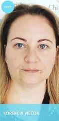 Operácia očných viečok (Blepharoplastika) - Fotka pred - Chirkoz Medical Clinic