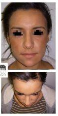 Lipofilling du visage - Lipostructure isolée d'une patiente amaigrie. Amélioration de la texture cutanée en plus de l'amélioration globale des volumes du visage et notamment des pommettes.
