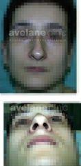 Operácia nosa (Rhinoplastika) - Fotka pred - Avelane Clinic